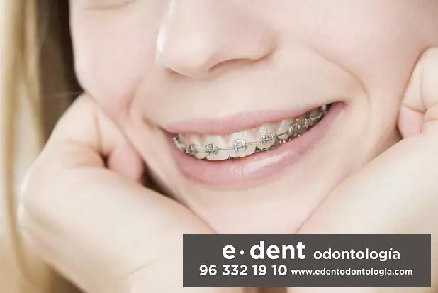 Ortodoncias infantil y para adultos en Valencia