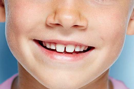 Implantes Infantiles